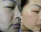 祛疤痕较有效方法 修巴堂专业除疤 想加盟开小型的美容院