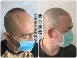 上海纹发,重塑发际线一对一指导教学