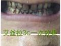 艾丝拉冷光美牙仪 7天美白加盟