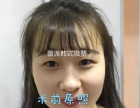 潍坊韩式微整形培训 潍坊哪里有做双眼皮的