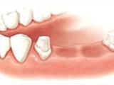 大连市西岗区康贝佳口腔诊所有限公司让老百姓放心的种植牙医疗服