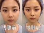 在北京学习微整形线雕培训机构哪家好需要费用多少