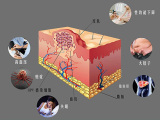 广州和爱减肥产品品质,十年专业,更高折扣的清理肠道脂肪信赖首