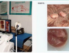 南昌肛肠医院美国ZZ电子肛门镜检查直肠炎病况的科学设备