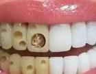 6D纳米浮雕牙齿美白