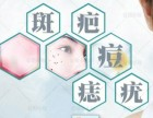 秦皇岛加盟代理(%五天祛斑)电话多少?祛痘吗?祛痣吗?