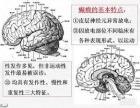 庆阳著名癫痫病医院治疗专家