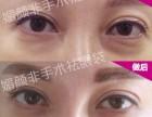 临汾去眼袋的方法哪种方便有效 临汾尧都区去眼袋需要多少钱