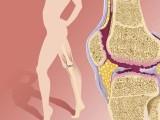 膝盖有积液看什么科