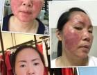 西藏城关斑美拉祛斑 脸部排毒价目