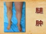 靜脈血栓等靜脈性 久不治愈而引起的小腿潰瘍