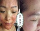 灸血清三分钟物理祛斑加盟 美容SPA