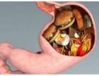 广州东大医院:什么是急性糜烂性胃炎?饮食应该注意什么?