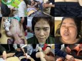 佛山中医针灸专业技能培训学校