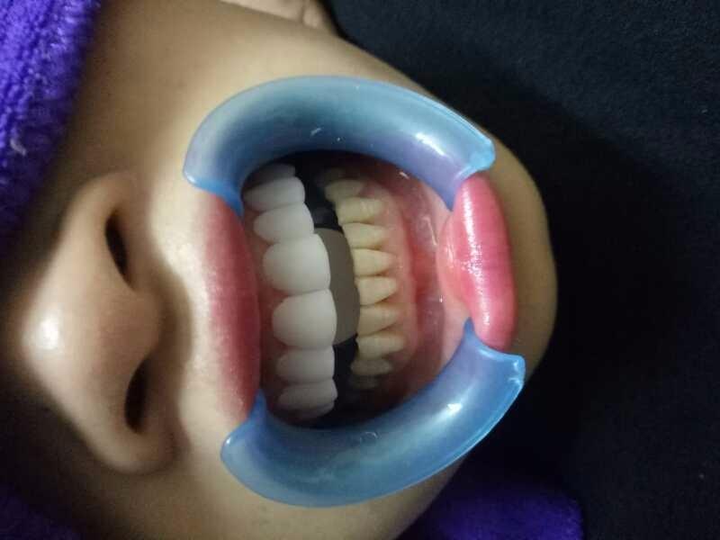 晋城美白牙齿怎么收费?私人订制小白牙无痛技术 白的自然 大方