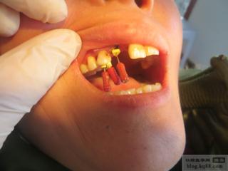高陵口腔牙体治疗预约-哪里有提供全面的口腔牙体治疗