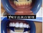 辽宁锦州牙齿美白,根治黄牙黑牙瓜子牙等!