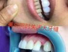 你想远离牙黄牙缝大的苦恼吗 济南小白牙让你开怀大笑