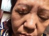 皮肤管理加盟痣斑王纯中药祛痣祛斑祛痘祛疣零成本零加盟