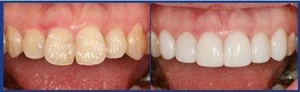 牙齿美白加盟
