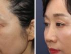 德州提眉 切眉手术后多长时间可以重新纹眉