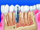 合肥种一颗牙需要多少钱