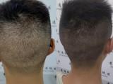 广东省了SMP纹发服务 广州纹发 广州青逸纹发