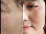山东兰颜姿化妆品有限公司专业祛斑签约治疗