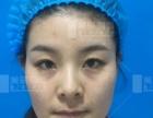 什么是面部填充 问美联脂标专家