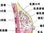 康老师专业无痛催乳通乳、急性乳腺炎、满月发汗