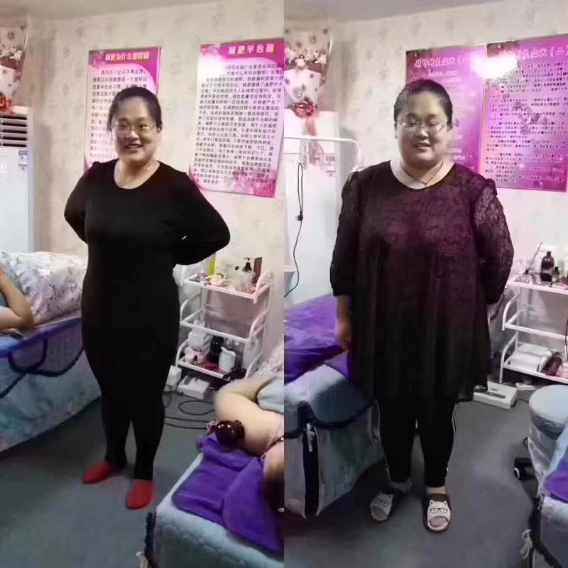 徐州尚赫减肥总代理 徐州尚赫免费加盟