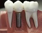佛山做种植牙选择纯钛效果吗?