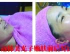 怀远韩美医疗美容光子嫩肤有什么优势