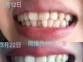 怎么让牙齿比较白