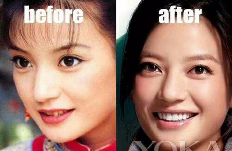 临沂美白牙齿怎么收费?私人订制小白牙无痛技术 白的自然 大方