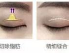 贴双眼皮3年 女孩眼睛竟然老了10岁