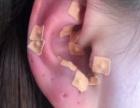 北京耳穴疗法培训价格及地址-赵建新全息耳穴疗法培训