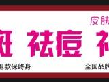 岳阳专业祛痣厂家天津祛痘祛斑 会红 祛痘