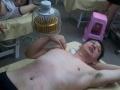阜阳专业的针灸技能培训班 阜阳针灸培训