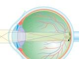 杭州儿童近视眼恢复 18岁以下佳治疗方法