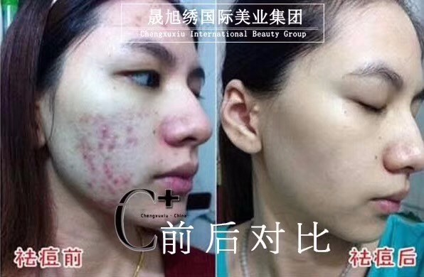 天津C+ 轻医美皮肤管理 ,打开毛孔通道,排毒排污
