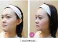杭州美容纹眼线整形方法美莱纹绣价格