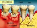 如何预防牙周炎?