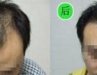 m型脱发怎么办呢?
