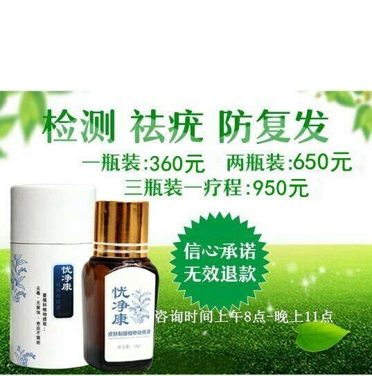 杭州治疗湿疣的土偏方
