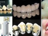 烤瓷牙二氧化锆全瓷牙一般多少钱,选择康贝佳