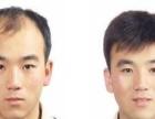 深圳高端织发补发假发