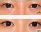 夏天适合做什么整形项目做双眼皮好恢复吗