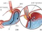 什么是胃反流,这个病严重吗?广州东大肛肠医院骗人吗?