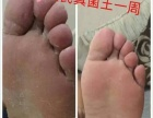 治脚气就用黄氏真菌王